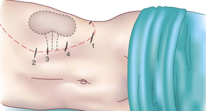 cirugía de las glándulas suprarrenales por laparoscópia