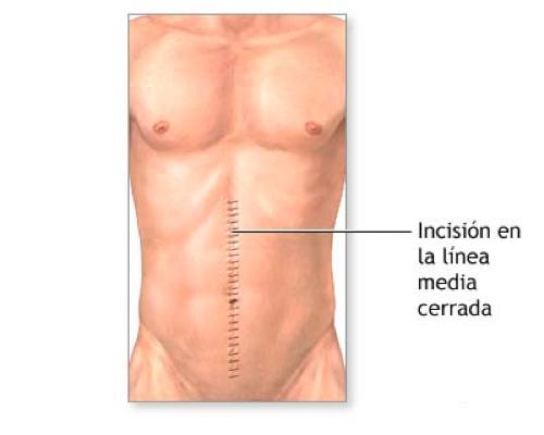 Cirugía del bazo